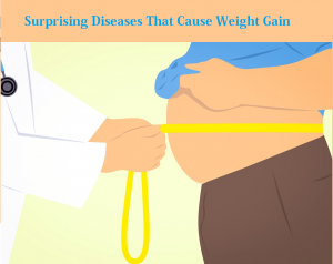Surprising Diseases That Cause Weight Gain for health