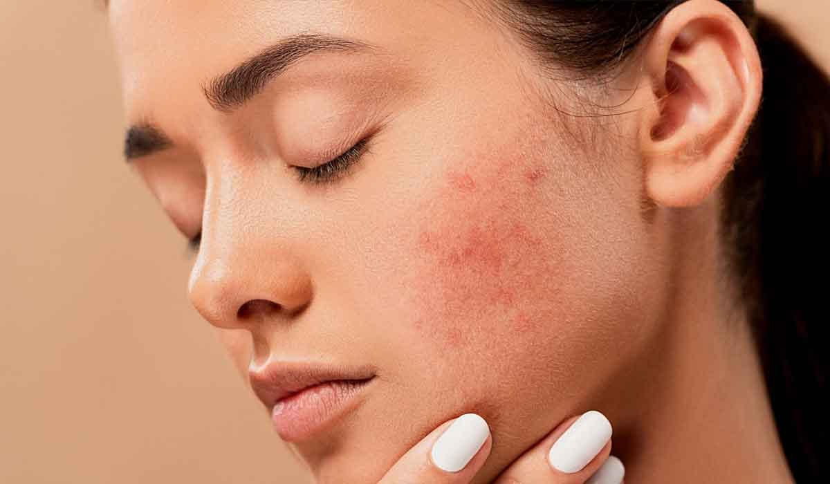 Skin Pigmentation: Causes, Types, And Treatment